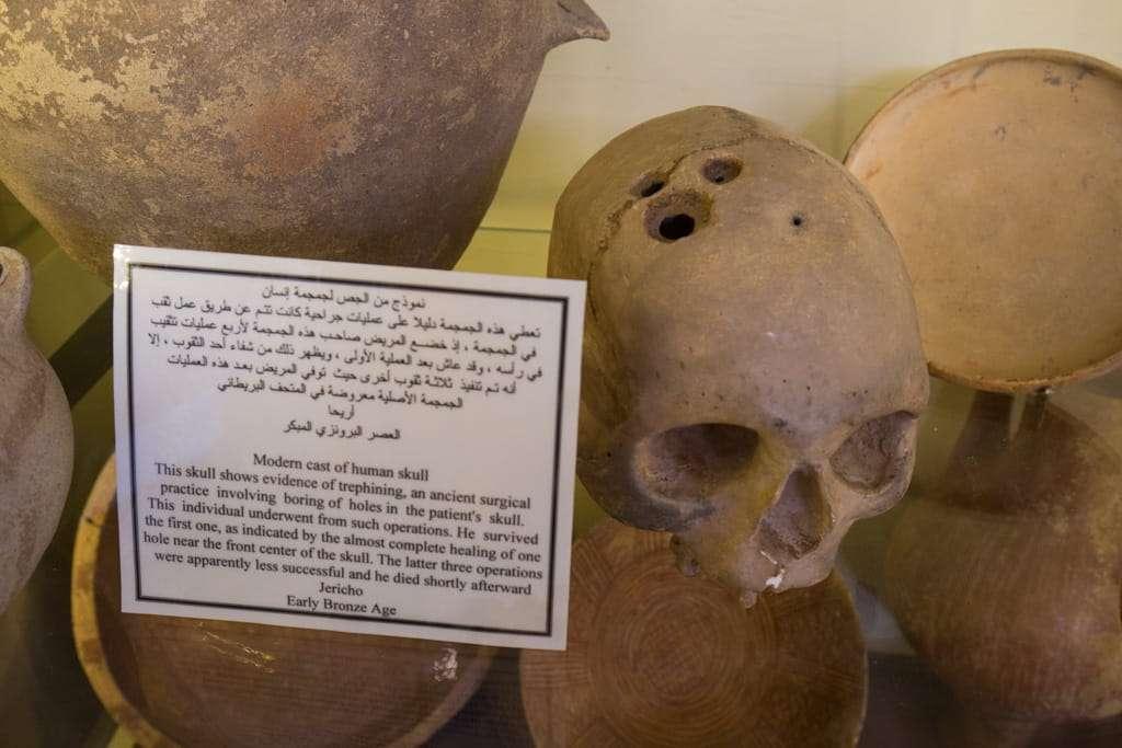Cráneo con 8000 años en el Museo Arqueológico de Amman